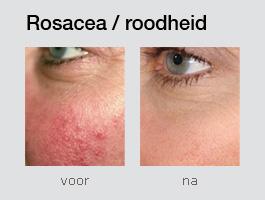 rood gezicht verminderen